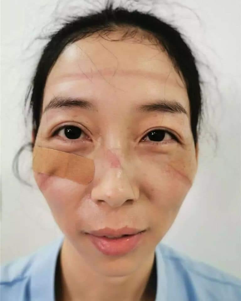 Image result for ჩინელი ექიმები